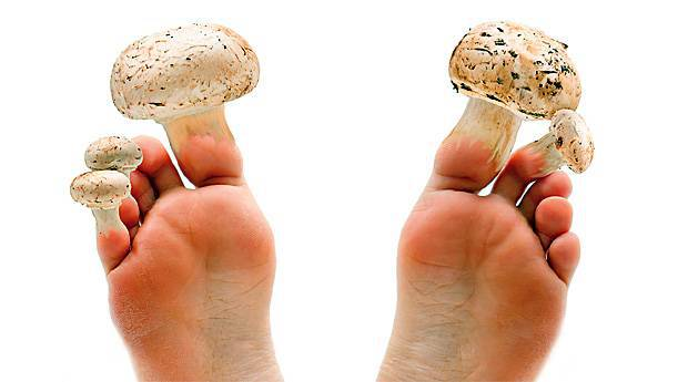 hongos en los pies sintomas