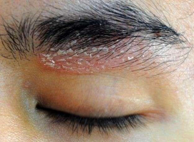 hongos en la cara causas