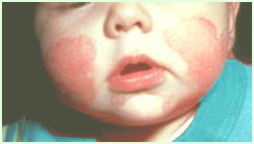 hongos en la cara de mi bebe