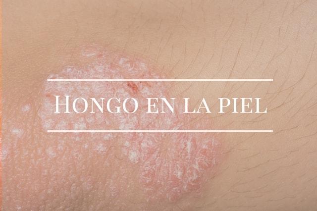 hongos a la piel sintomas