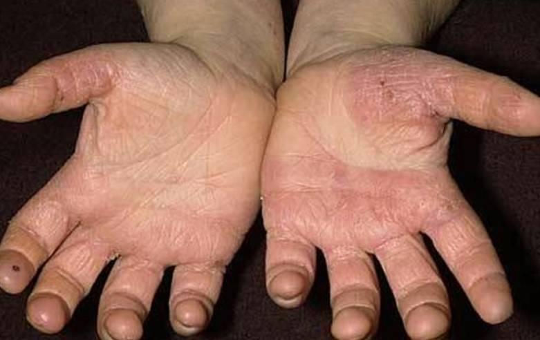 hongos a las manos
