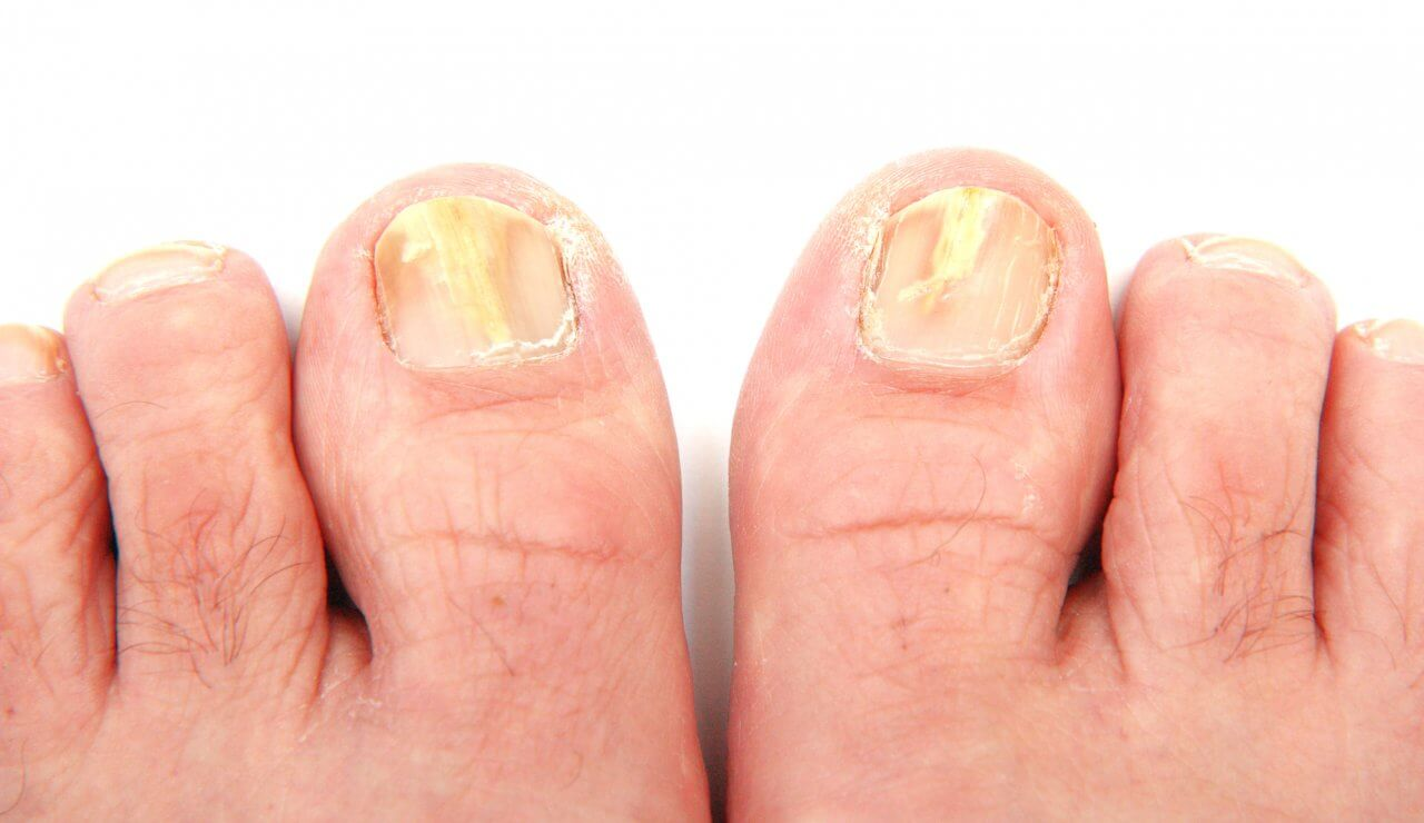 hongos en las uñas delos pies sintomas
