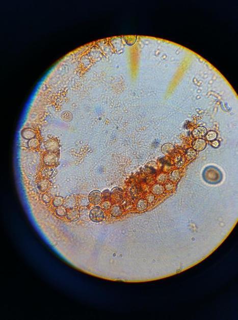 hongos microscopicos reproduccion