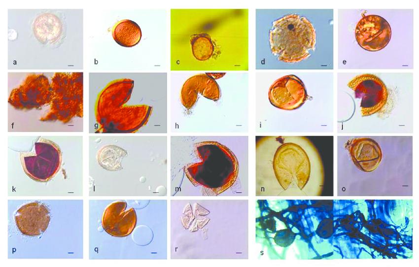 hongos micorrizicos