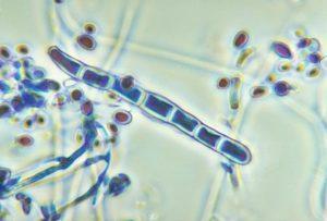 hongos patogenos en humanos