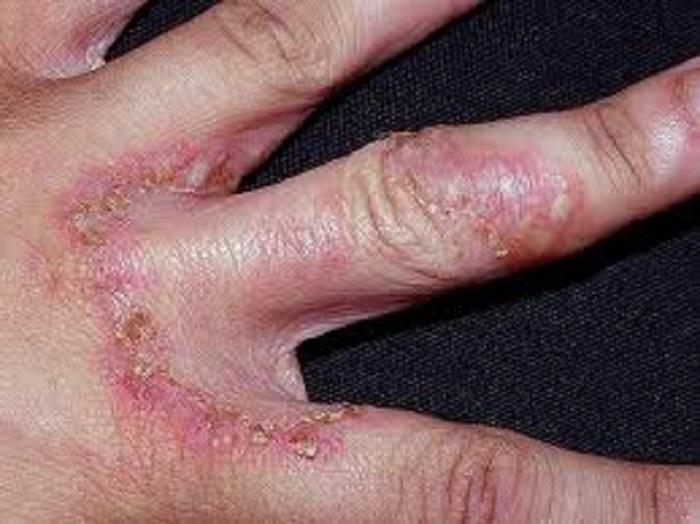 hongos en las manos caracteristicas
