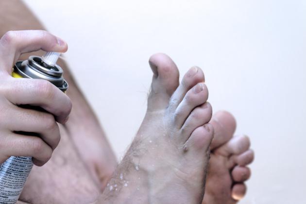 hongos en los pies tratamiento