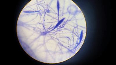 hongo dermatofito dominio