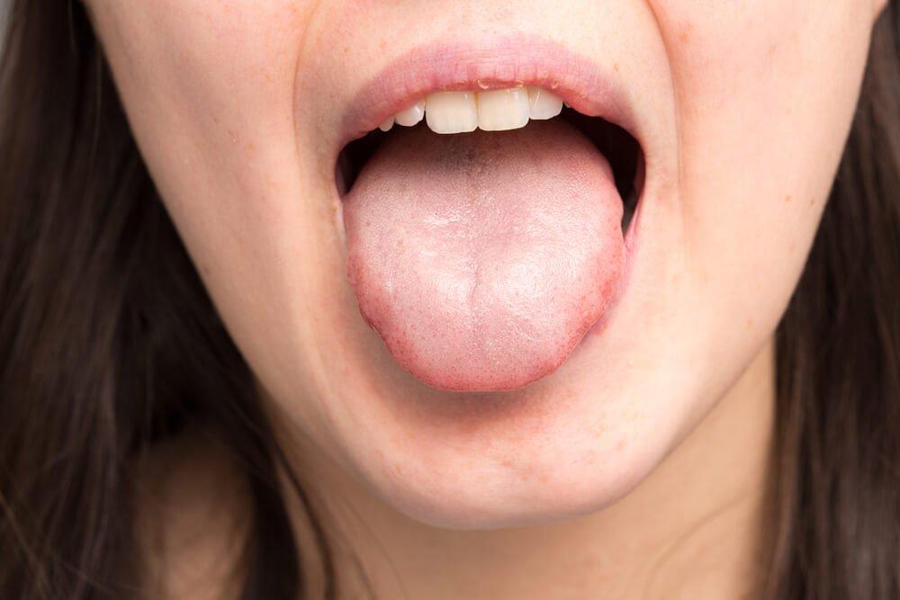 hongos en los labios remedios caseros