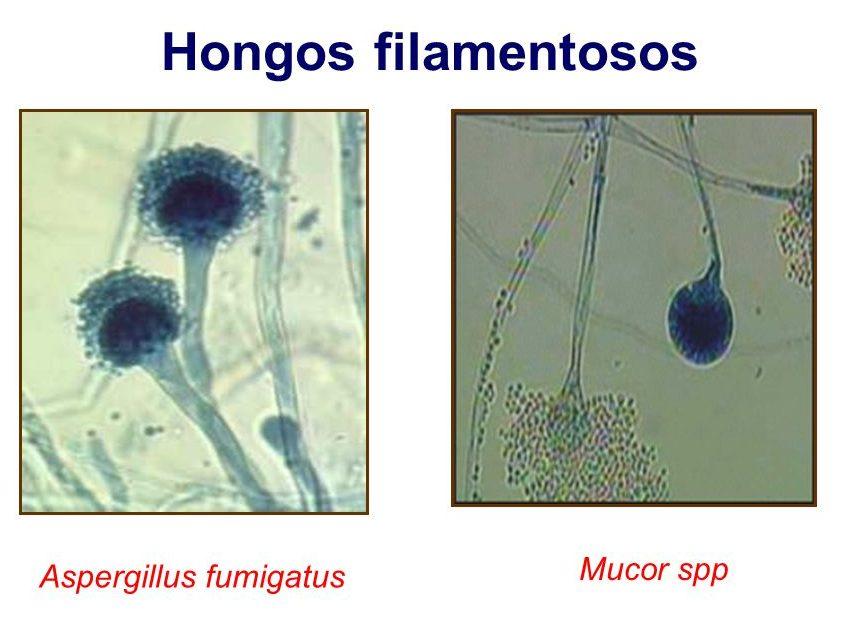 hongos filamentosos caracteristicas