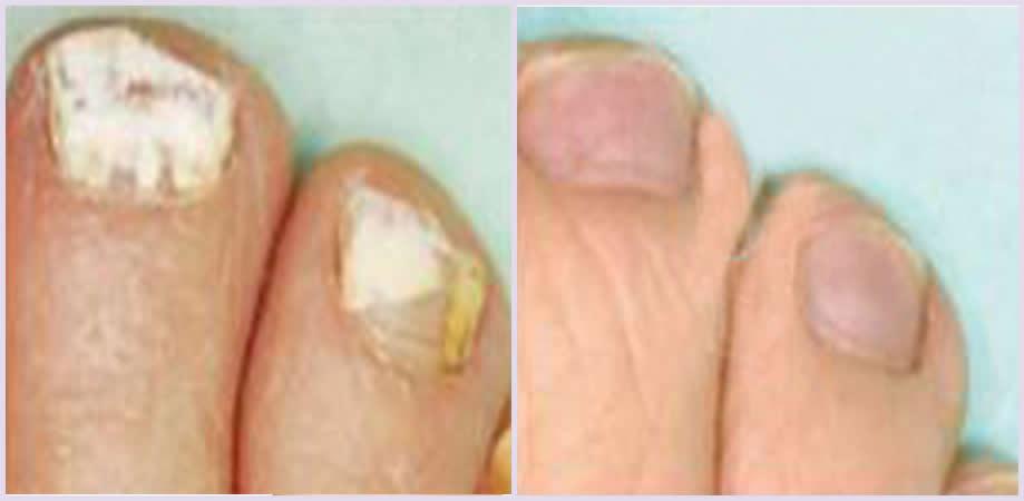 hongos en las uñas delos pies